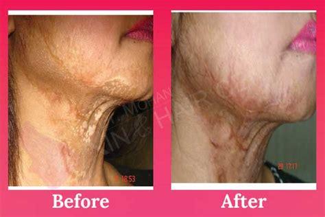 Laser Burn Scar Removal/treatment In Phagwara, Punjab