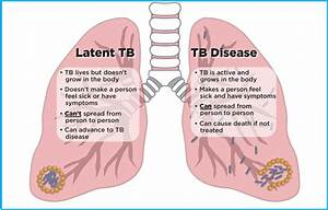HIV and Tuberculosis (TB) | Understanding HIV/AIDS | AIDSinfo