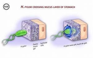 Diagram Showing How H   Pylori