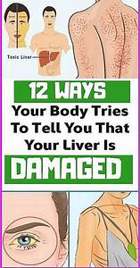 It U0026 39 S Necessary That You Care For Your Liver The Best Way Possible  Another Thing That You Also