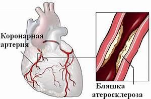 Стенокардия гипертония операция