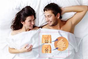 Вирус папилломы человека симптомы мужчин