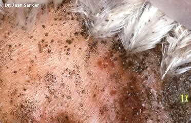 what color are nits when they are dead poultry lice and mites identification and treatment in