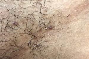 Ingrown Hair Treatments Kensington London Skin Clinic