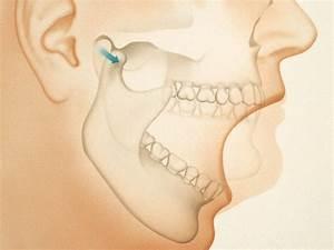 teeth grinding pain relief