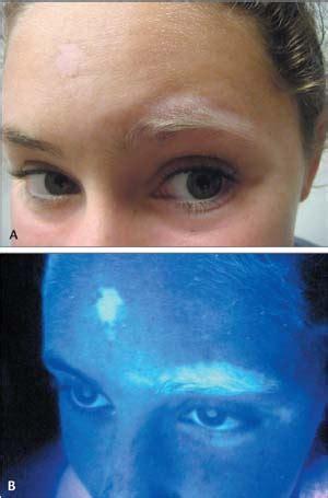 vitiligo diseases conditions 5minuteconsult