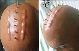 Bizarre body implants