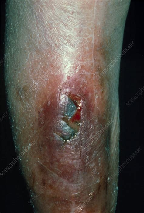 infected wound  arm caused  rose thorn stock image