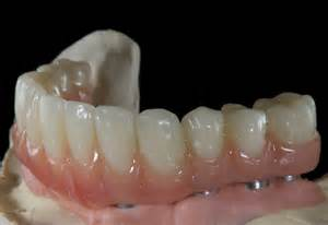Implant Retained Partial Denture
