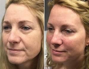 Best eye, creams: Dark circles, puffiness wrinkles 2018