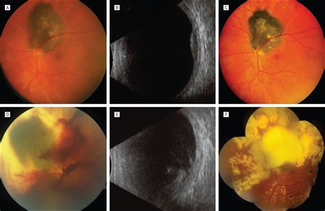 safety  pars plana vitrectomy  eyes  plaque