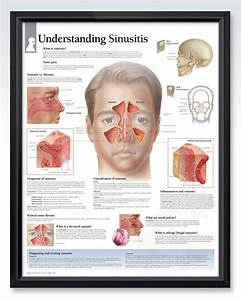 Understanding Sinusitis Exam