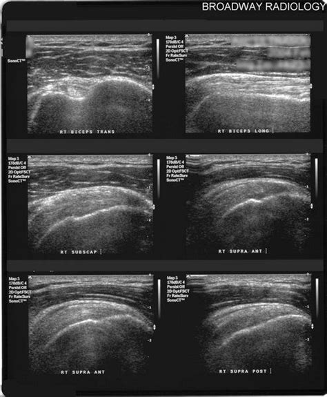 normal shoulder ultrasound | Ultrasound, Radiology ...