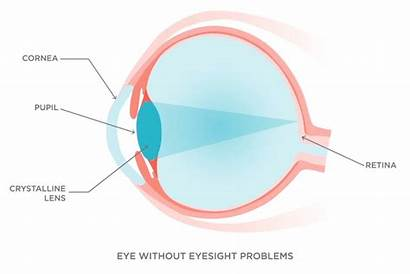 Hyperopia Astigmatism Presbyopia Essilor Retina Vision Cornea