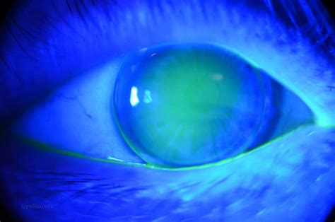 typical corneal rigid gas permeable rgp contact lens