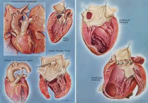 Heart Disease (left) and Arteriosclerotic Disease of the Heart ...  Heart Diseases Digoxin