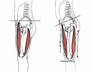 Does Anterior Pelvic Tilt Cause Back Pain
