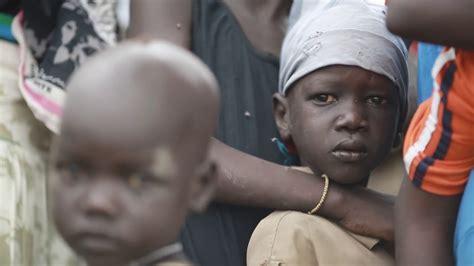hunger  ostafrika hilfe fuer hungernde kinder  afrika