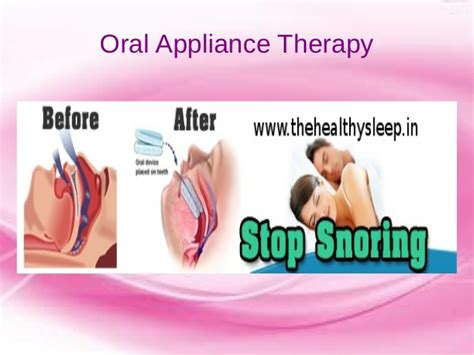 Sleep Apnea Treatment Kannur Kerala India