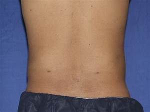 Northern Virginia Man Loses Love Handles (Flanks) With ...