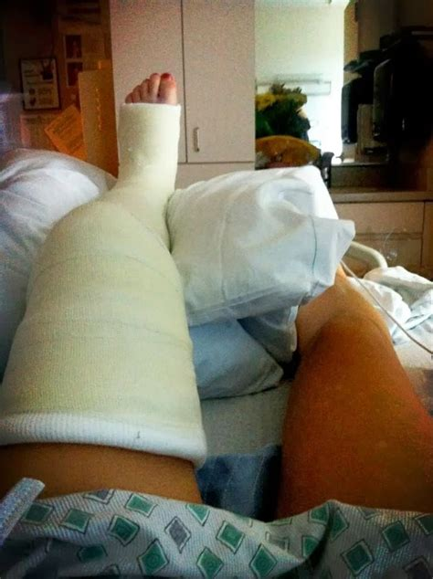 Llc Castleg Cast It Cast Leg Cast Long Leg Cast