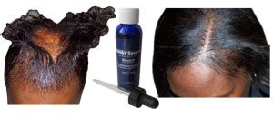 Minoxidil –Treat Hair Loss And Promote Regrowth