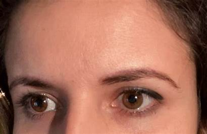 Side Raise Brow Frontalis Face