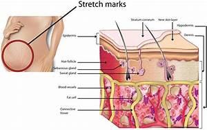 Stretch Marks Specialist  U00b7 Laser Dermatology  U00b7 Top