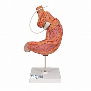 Human Stomach Model With Gastric Band  2 Part