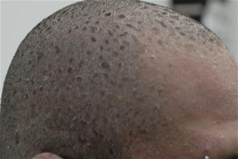 scaly plaques spread  head  toe  clinical advisor