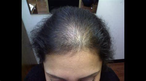 Rapid Hair Loss - Telegen Effluvium [DermTV.com Epi #516