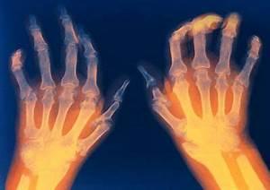 Средство от боли в суставах у спортсменов