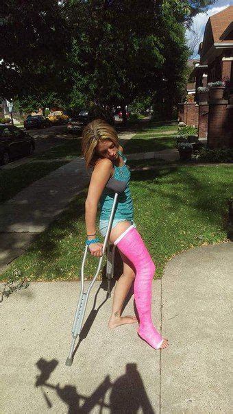 138 Best Crutches Images On Pinterest Ankle Free Blog
