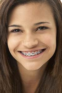 Dr  Hunt And Our Team Think That Braces Are Pretty Cool
