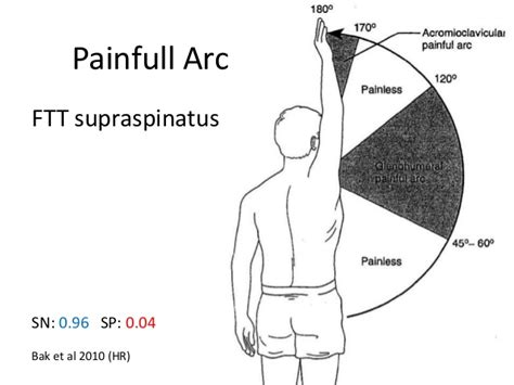 Full Thickness Rotator Cuff Tears, Value Of Clinical Tests