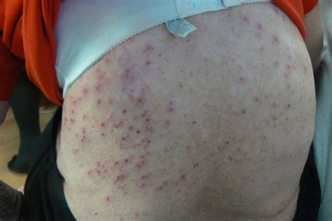 extremely pruritic rash     chest clinical