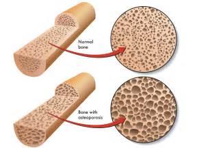Osteoporosis & Bone Health - Care Advantage  Osteoporosis Bone Health
