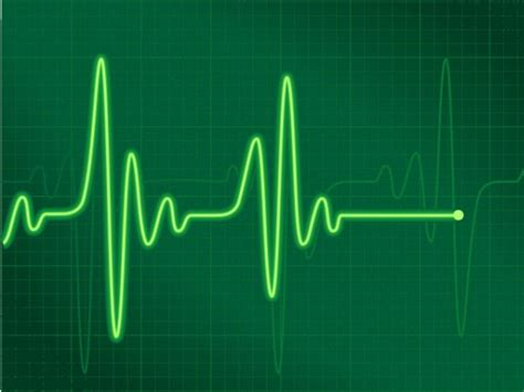 Heartbeat Irregularity a Common Condition With Potential ...