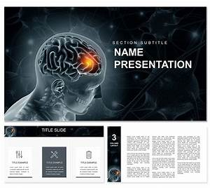 Diseases Of Brain And Nervous System Powerpoint Template