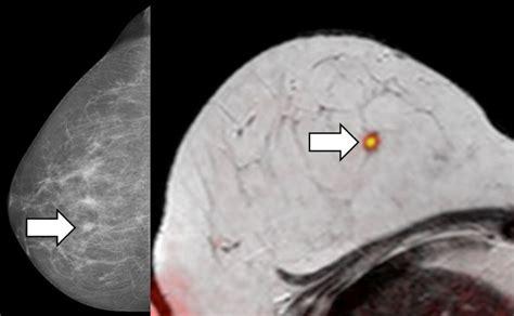 bild statt biopsie bei brustkrebsverdacht krebs nachrichten
