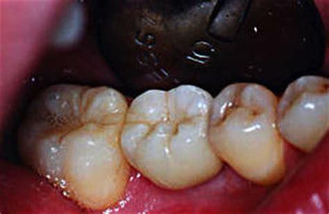 risiken bei zahnimplantaten