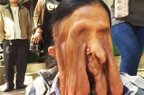 blind grandma  bizarre melting face condition