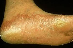 Пальцы ног мокнут от грибка