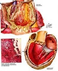 diseases   pericardium myocardium  endocardium