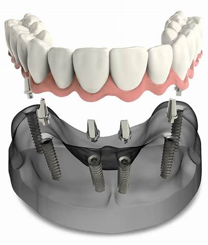 Dental Arch Implants Implant Surgery Oral Upper