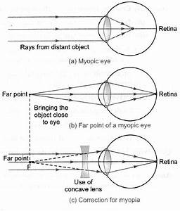 Draw The Ray Diagram For Nearsighted People