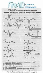 Гипертония миокарда левого желудочка лечение