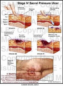 Stage Iv Sacral Pressure Ulcer
