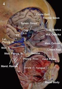 Anatomy Of The Nasal Cavity And Paranasal Sinuses