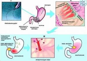 Геморрой после родов при грудном вскармливании